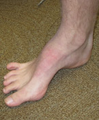 Flat feet or high arches